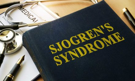 Sjorgen's Syndrome?
