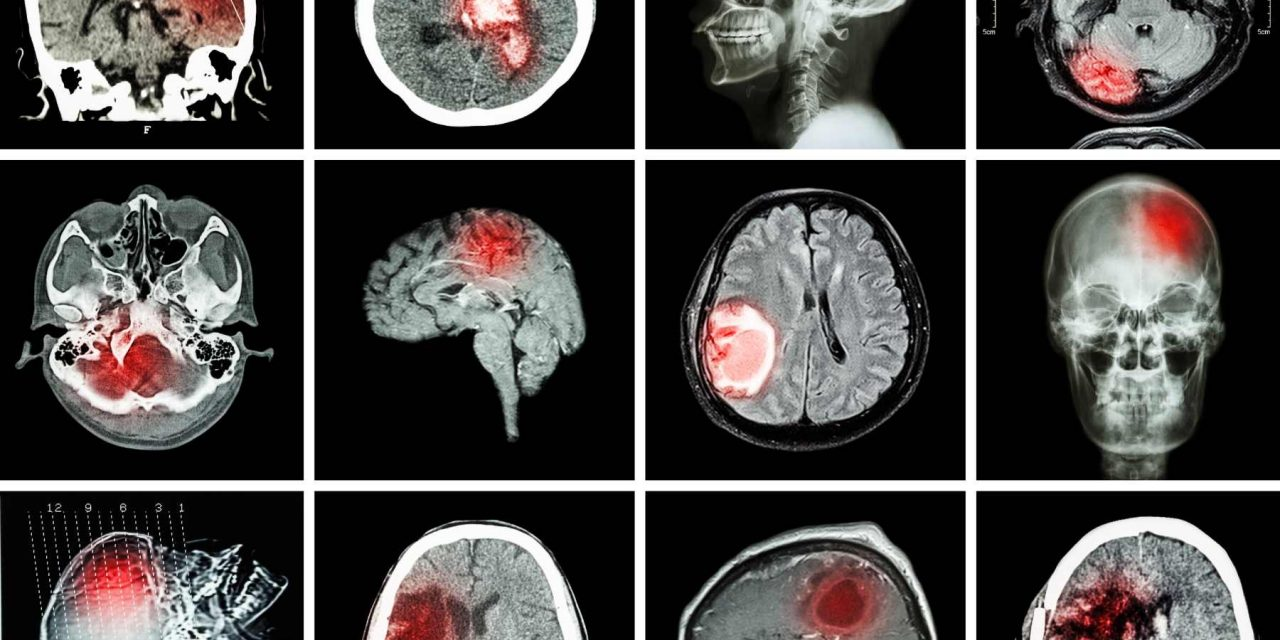 Emily Answers Your Brain Tumor Related FAQs
