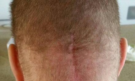 Radiation Hair Loss