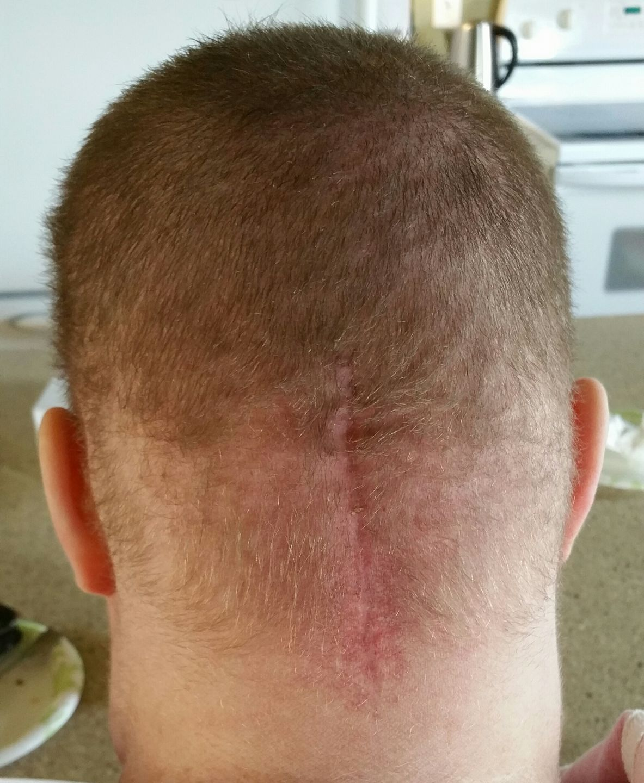 radiation hair loss.jpg
