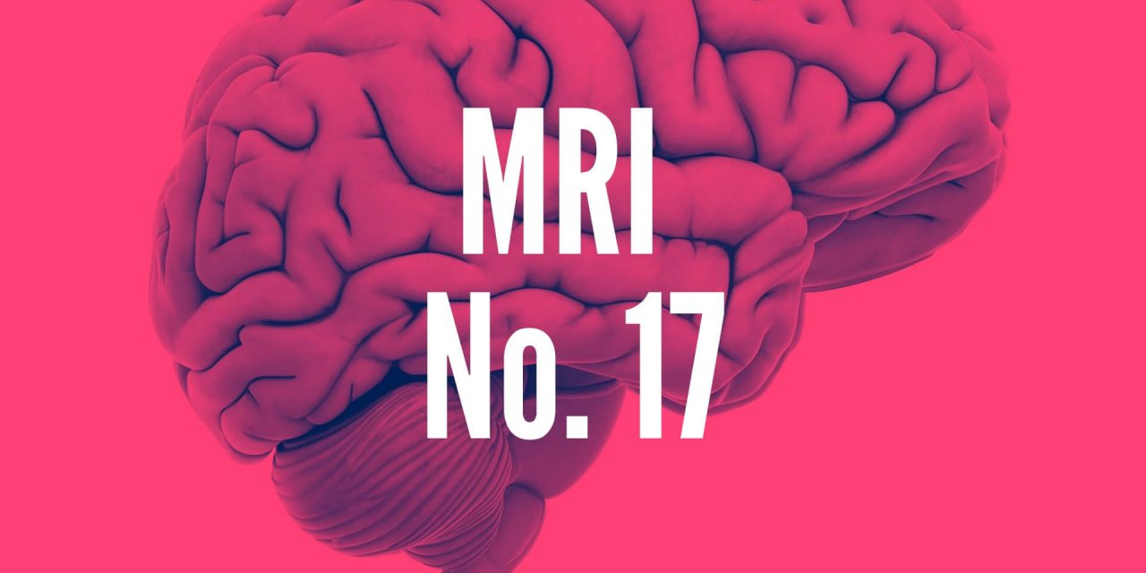 Results of Brain MRI No.17