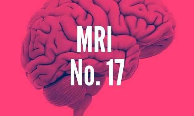 Results of Brain MRI No.17