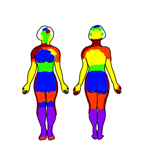 Colored coded GPI index of the pain levels I am feeling. Pain is most intense in my head, neck, and shoulders.